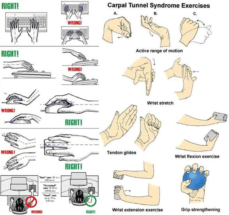 Carpal Tunnel Syndrome | Pinoy Tekkie